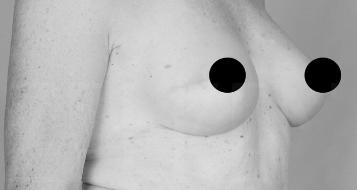 Breast Reconstruction Before Secondary Page
