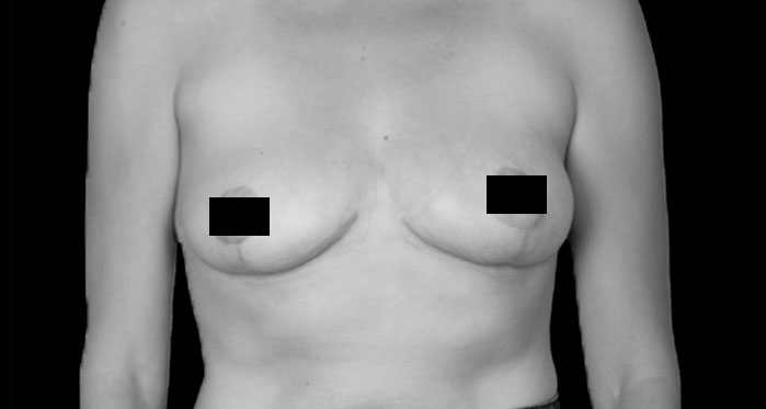 Breast Reduction & Mastopexy Before Secondary Page
