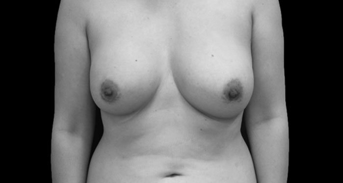 BREAST REVISION Before Secondary Page