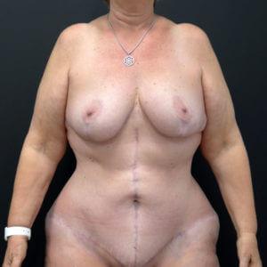 Patient 65 After