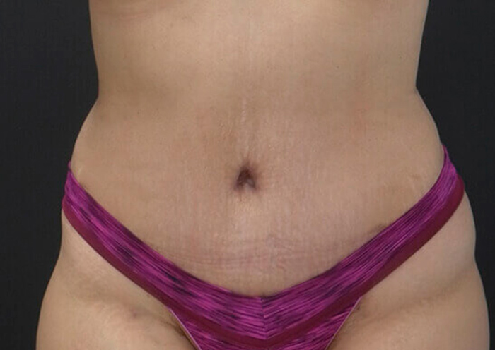 Body Contouring After Major Weight Loss, Newport Beach, CA Before Secondary Page