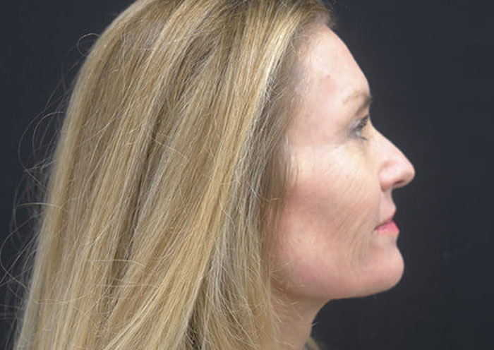 Laser Skin Resurfacing in Newport Beach, CA Before Secondary Page