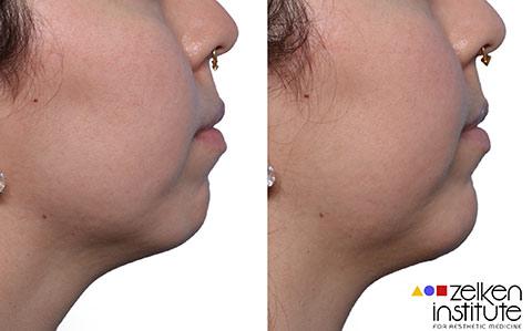 Chin Augmentation Left Column Only Photo