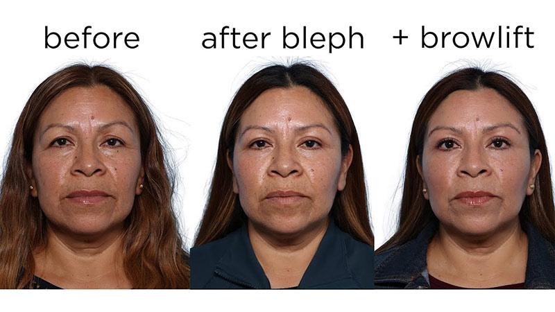 Blepharoplasty Thumbnail Photo